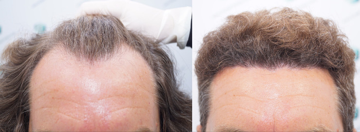 Technical Hair Graft FUE 3164 Follicles (7466 Hairs)